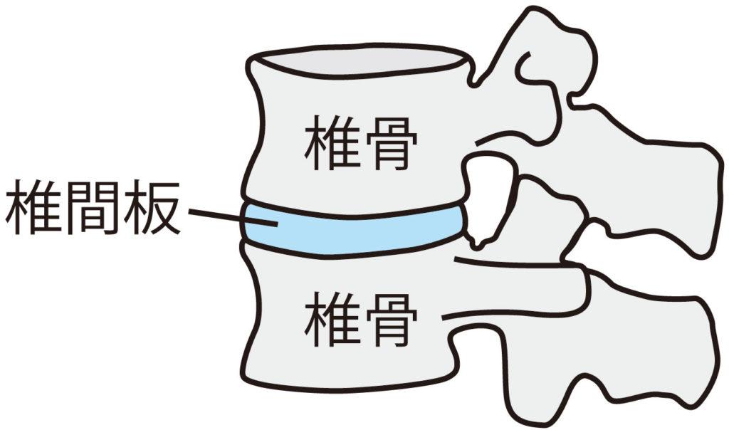 カイロプラクティック 椎間板