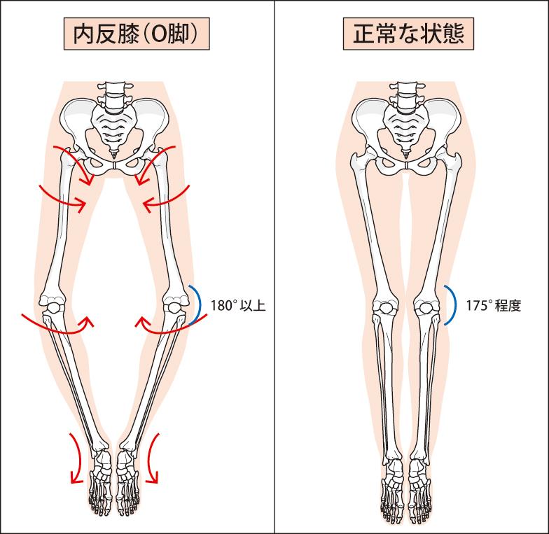 O脚 膝の痛み